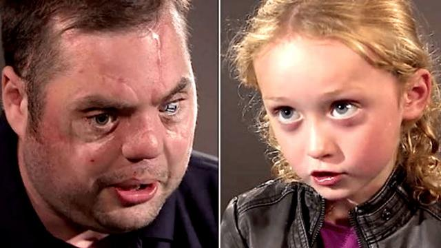 Disfigured Veteran With Scars Says Hi To 5 Year Old Her Response Brings Millions To Tears
