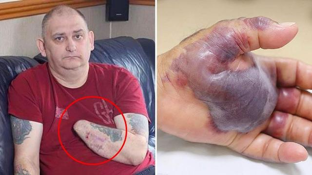 The Reason Why Doctors  Amputate Man's Arm Will Shock You