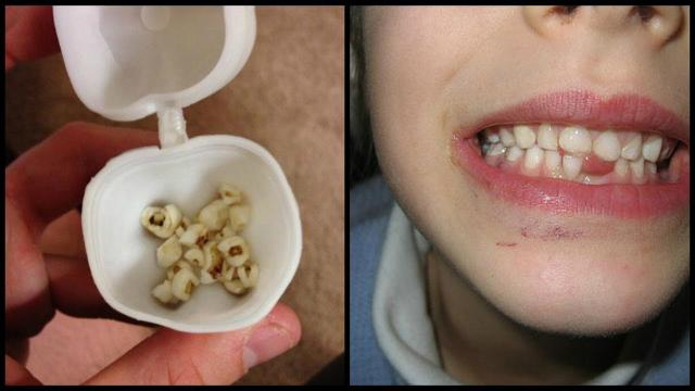 Doctors Are Urging Parents Everywhere To Keep Their Kids' Baby Teeth