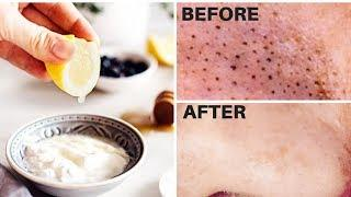 How To REMOVE BLACKHEADS FROM NOSE OR EARS with 6 Face Mask Recipes