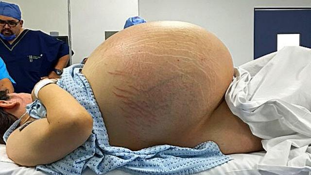 Woman Can't Give Birth, Then Doctors Realize What's Growing Inside Of Her